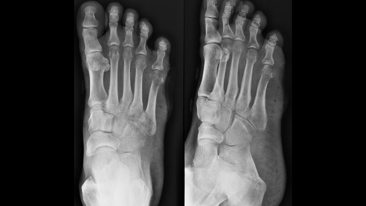 X-RAY FOOT AP/OBL , ANATOMY AND PHYSIOLOGY PART 19 - YouTube