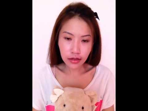 Ploypatcha : รีวิว หลังศัลยกรรมปากบาง^_^