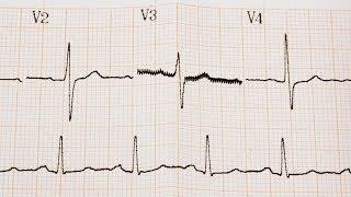 הפרעות בקצב הלב: מאפיינים, גורמים ושכיחות