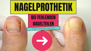Nagelprothetik  | Podologie - medizinische Fußpflege