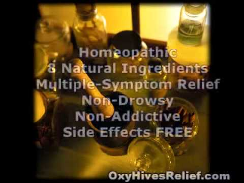 Oxyhives Hives Relief Review Natural Remedies For Hives Youtube