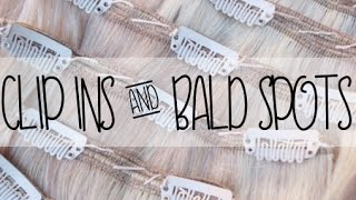 Clip in Hair Extensions Damage - Bald Spots - Hair Loss | Instant Beauty ♡