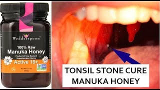 Top 5 Natural Cures for Tonsil Stones