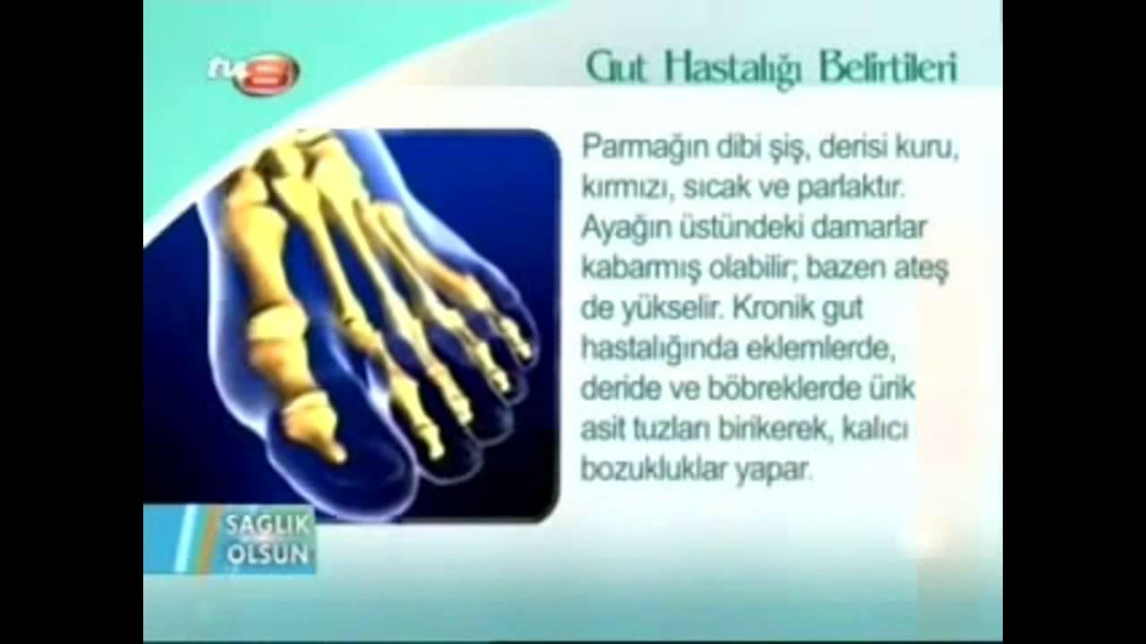 Gut Hastalığı Nedir Belirtileri ve Tedavisi