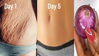 IN 5 DAYS REMOVE STRETCH MARK VERY FAST PERMANENT RESULT USING ONION