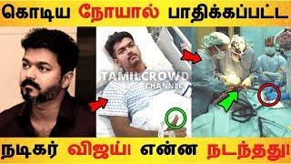 கொடிய நோயால் பாதிக்கப்பட்ட நடிகர் விஜய்! என்ன நடந்தது! | |Tamil Cinema | Kollywood News