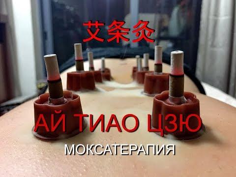 Ай Тиао Цзю - Моксатерапия  методики Традиционной Китайской Медицины Загальский Павел