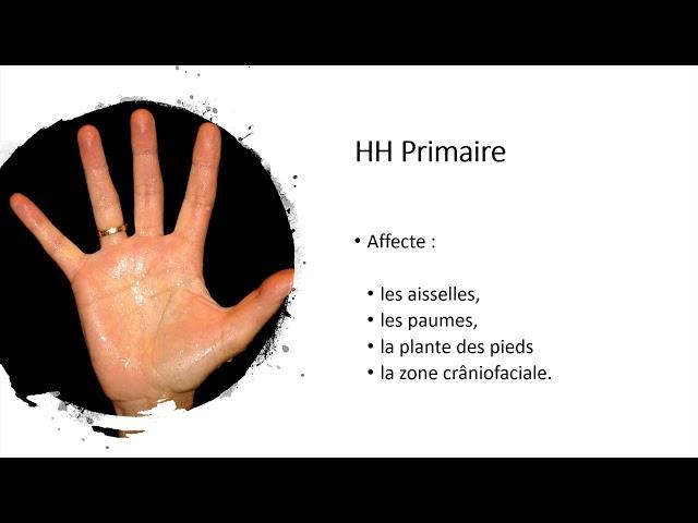 Hyperhidrose essentielle - Société Française de Phlébologie
