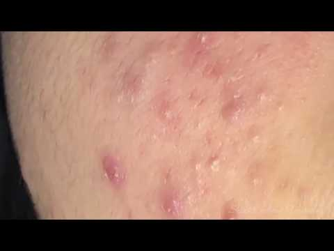 Tokyo Acne Treatment Blackhead Extractions Popping #50