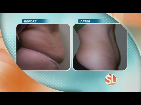 Contour Medical Can Help Contour Your Body With UltraShape