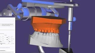 Височно-нижнечелюстной сустав / Миорелаксационная каппа / шина на зубы / ВНЧС / ExoCad