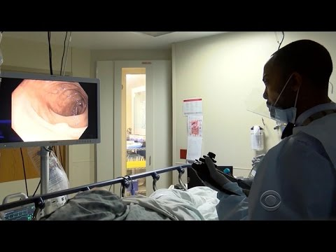 Colon cancer cases in patients under 50 on the rise