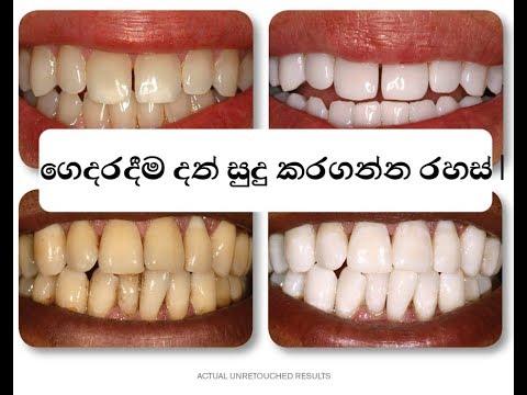 sinhala-ගෙදරදීම-දත්-සුදු-කරගන්න-රහස්-|-teeth-whitening-secret,-home-remedy