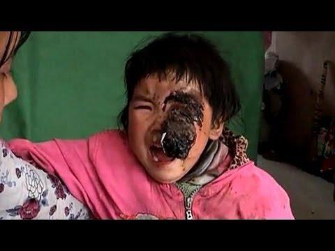 中国内陸の貧困浮き彫りに 雲南のがん幼児逝く