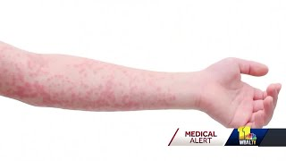 Officials warn of confirmed measles case in Pikesville