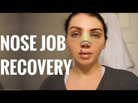 NOSE JOB RECOVERY | DOES IT HURT? | PT 3