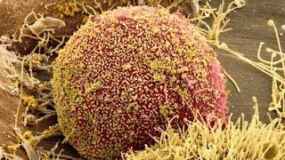 HIV outsmarts immunity | كيف يتغلب فيروس الإيدز على مناعة الانسان وماهي فرص تطوير تحصين ضده