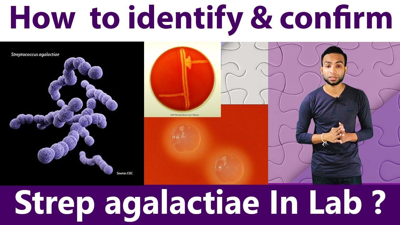 How to identify & Confirm Streptococcus agalactiae