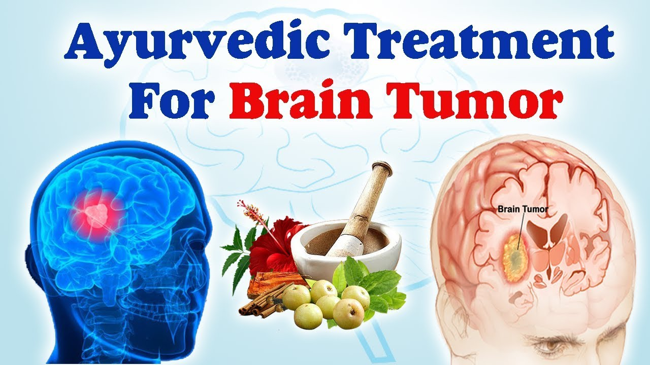 Brain Tumor - Best Ayurvedic Treatment for Brain Tumor By Ayurveda