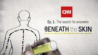 Ep. 1: Beneath the Skin - The Search For Answers
