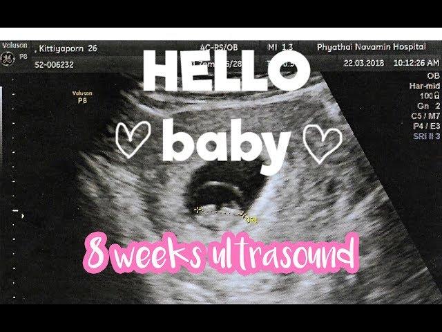 ???????????? 8 ??????? | 8 weeks pregnancy ultrasound | Cherte