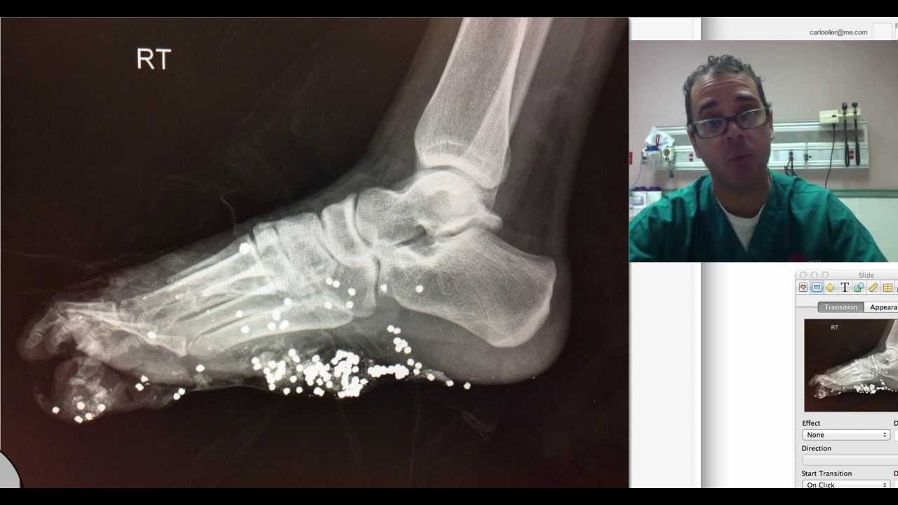 foot xray potpourri - YouTube
