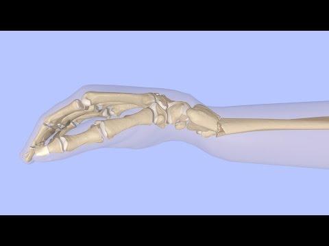 Перелом костей голени, симптомы, причины, лечение -
