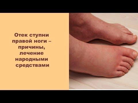 Отек ступни правой ноги – причины, лечение народными средствами