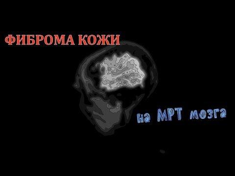 ФИБРОМА КОЖИ ГОЛОВЫ на расшифровке снимков МРТ головного мозга