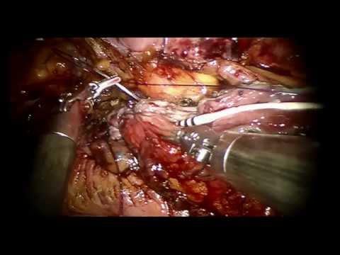 Robotic Boari Flap - Alejandro R. Rodriguez MD