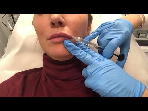 Lip Filler Live Demo performed by Body+Beauty Lab Medical Injector Sarah Sidiqi