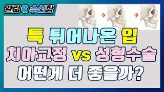 돌출입교정술 [열린수신함 44편] 레알성형외과 김수신 …