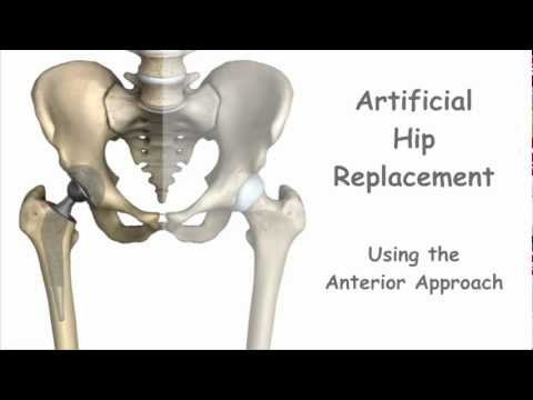 Artificial Hip Replacement - Anterior Approach