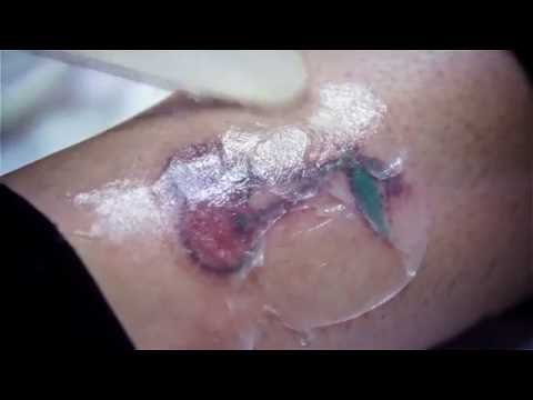 MATA Medical Aesthetics Training Academy Harley Street - Laser Tattoo Removal Training