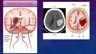 Apa Penyebab Stroke? Apa itu stroke? Semoga Bermanfaat & Sehat Selalu ya Sobat Sehat....