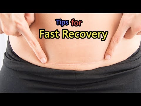 C-Section Recovery Tips for a Fast Recovery
