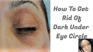 How To Get Rid Of Under Eye Dark Eye Circle | Fade Off Dark Under Eye Circle
