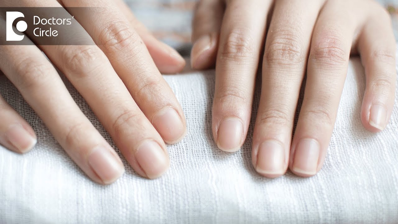 Causes of nails turning white partially or fully - Dr. Amee Daxini ...