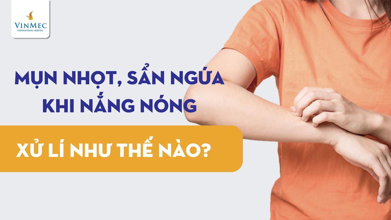 Mụn nhọt, sẩn ngứa khi nắng nóng cần xử lý như thế nào?  ThS, BS Nguyễn Duy Bộ, BV Vinmec Times City