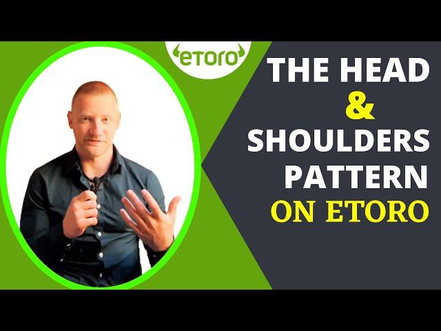 The Head and Shoulders Pattern On eToro  | Toro Demo Trading |