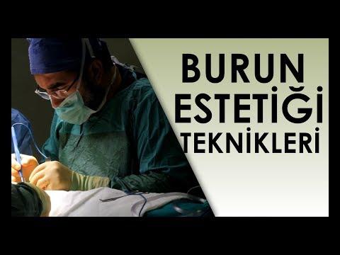 Burun Ameliyatı Teknikleri [ Op Dr Ali Mezdeği ]