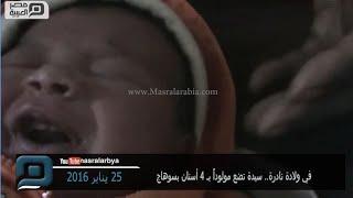 مصر العربية   في ولادة نادرة.. سيدة تضع مولوداً بـ 4 أسنان بسوهاج