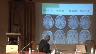 Лечение глиальных опухолей головного мозга у детей(, 2011-12-29T09:15:26.000Z)