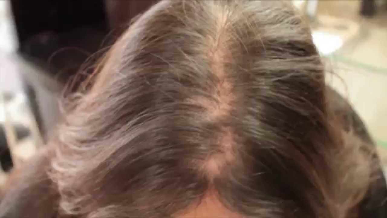 Hair loss in women treatment Testimonial hair cubed  YouTube