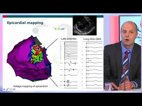 EHRA free webinar: New mapping tools for VT ablation