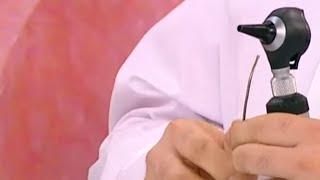 видео Елена Малышева. Симптомы и лечение отита среднего уха