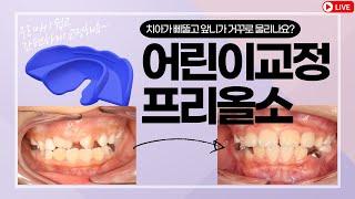 [치과유튜브] 우리아이가 삐뚠앞니, 거꾸로 물리는 치아…