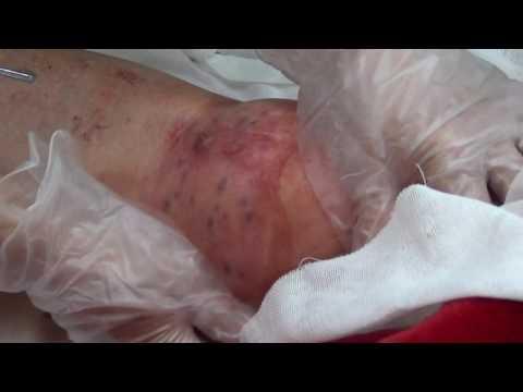 蘇月梅骨刺拔罐—膝關節部位處理 記錄片