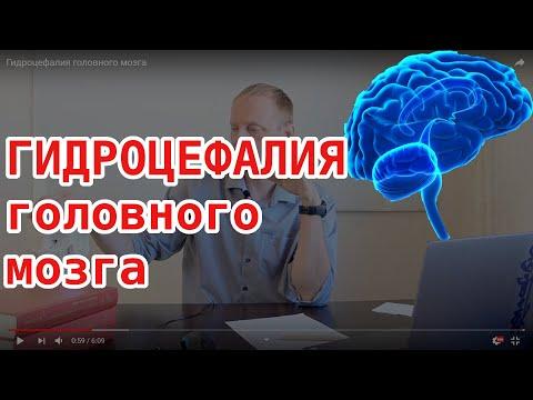 ГИДРОЦЕФАЛИЯ головного мозга. Основная причина заболевания и как вылечить навсегда без лекарств.