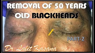 HAVING BLACKHEADS FROM 50 YEARS  By Dr.Lalit Kasana